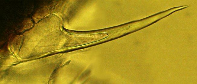 жало крапивы под микроскопом