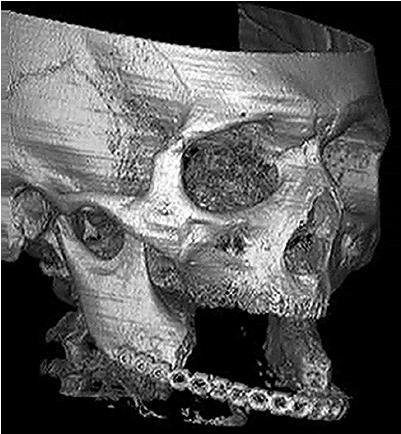 Рис. 1. Трехмерная компьютерная томография обширного дефекта