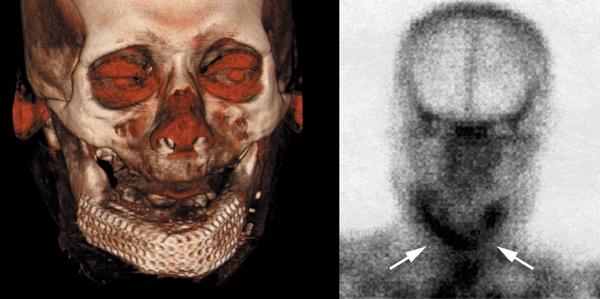 Рис. 8. Трехмерная компьютерная томография (слева) после пересадки костного трансплантата с повышением четкости мягких тканей (красное) и повторная сцинтиграфия скелета (справа) с увеличенным количеством меченых атомов в области трансплантата, доказывающим продолжающийся рост и минерализацию кости (стрелки).