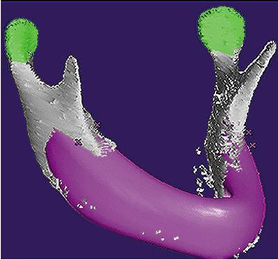 Рис. 1. компьютерное планирование идеального нижнечелюстного трансплантата