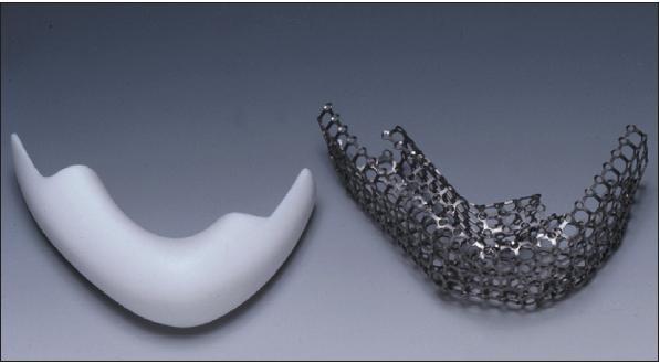 Рис. 2. Тефлоновая модель нижней челюсти (слева) и титановый ячеистый каркас (справа).