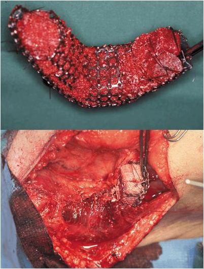 Костного мозга вверху и имплантация