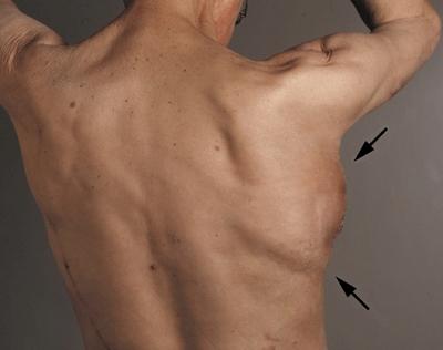 Рис. 4. Вид со спины трансплантата нижней челюсти через 3 недели после имплантации. Стрелки показывают области имплантации внутри широчайшей мышцы спины (m. latissimus dorsi).