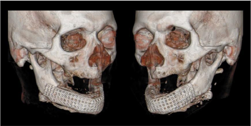 Рис. 7. Трехмерная компьютерная томография нижней челюсти после пересадки трансплантата.