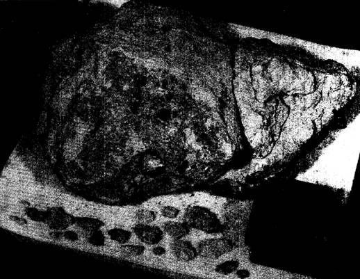 №72275 вес 3640 грамм. Крупный камень. Форма камня напоминает гигантскую букашку, «божью коровку». Со временем рыхлая «брекчия» сильно разрушилась и рядом с ней лежат отвалившиеся от основного камня мелкие камешки.