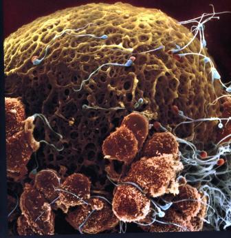 От 3-7 часов после эякуляции: сперматозоиды