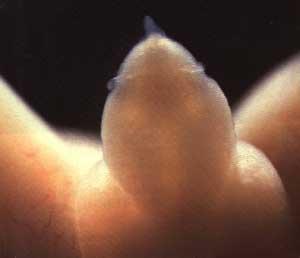 Этот маленький пенис принадлежит мальчику, которому пока всего 16 недель. В его семенных каналах уже есть сперматозоиды…