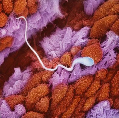 Сперматозоид в складках слизистой оболочки маточных труб продвигается навстречу яйцеклетке.