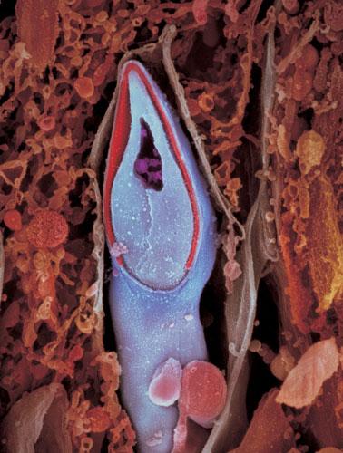 Продольный разрез сперматозоида. Генетический материал содержится в головке сперматозоида.
