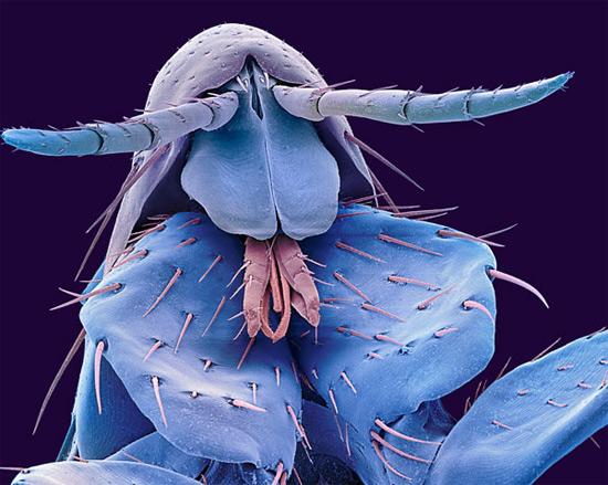 Голова блохи (Pulex irritans)