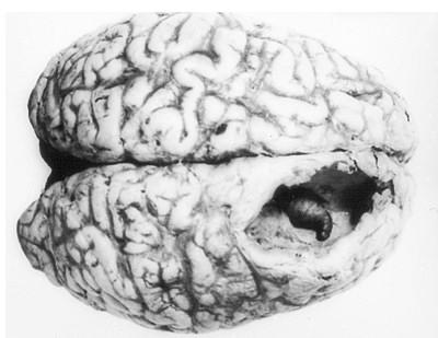 Личинка овода, ковыряющаяся у вас в мозгу. Поедающая ваши мысли.