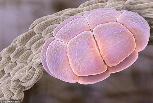 Пыльца альбиции (также известной как шелковое дерево)