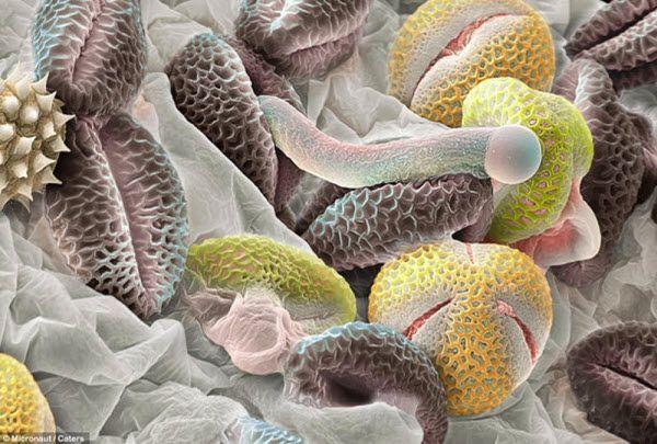 Серые гранулы – пыльцевые зерна от калины лавролистной. Одно из них начало превращаться в трубку, по которой сперма переходит в семязачаток завязи. Желтые гранулы – пыльца от других видов растений