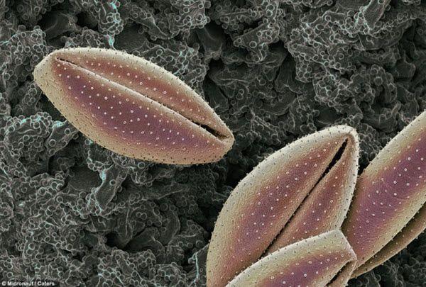 Пыльца с лилии. Аллергия на пыльцу появляется у многих людей. Клетки в носу и глазах выпускают гистамин и другие химикаты, когда контактируют с пыльцой, отчего краснеют глаза и появляется насморк