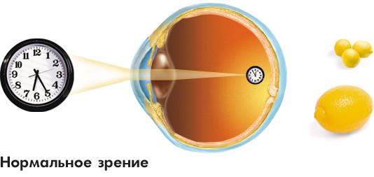 Заболевания зрительной системы: Рис.1