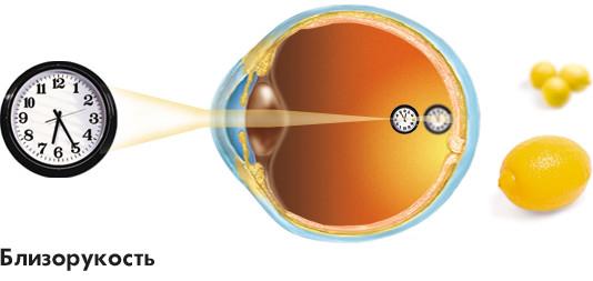 Заболевания зрительной системы: Рис.2