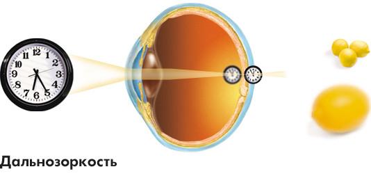Заболевания зрительной системы: Рис.3
