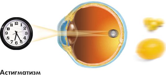 Заболевания зрительной системы: Рис.4