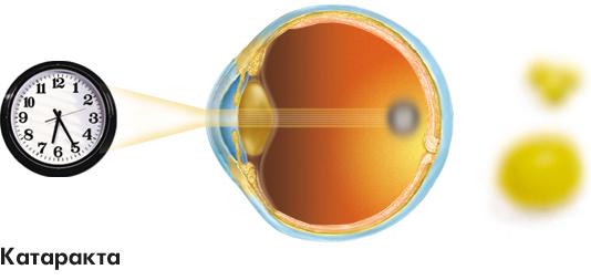 Заболевания зрительной системы: Рис.5