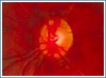 Заболевания зрительной системы: Рис.7