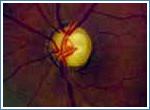 Заболевания зрительной системы: Рис.8