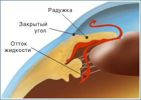 Заболевания зрительной системы: Рис.9