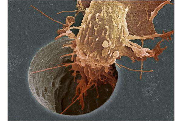 Раковая клетка движется через отверстие в фильтре.