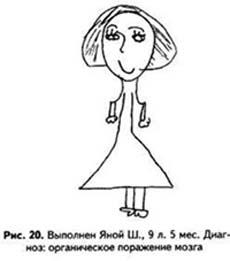 Рисунок человека: Рис.14