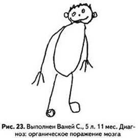 Рисунок человека: Рис.17