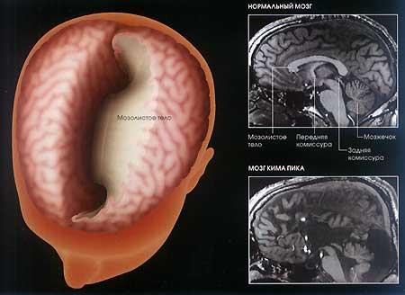 Феноменальный мозг: Рис.2