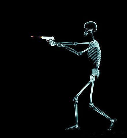 Жизнь в лучах рентгена: Рис.2