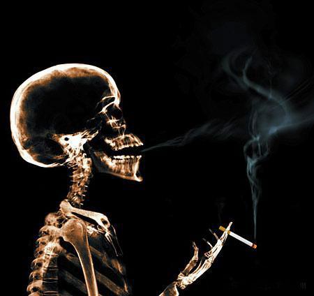 Жизнь в лучах рентгена: Рис.5