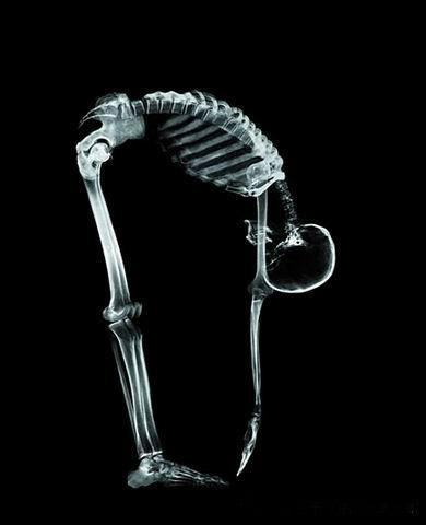 Жизнь в лучах рентгена: Рис.6