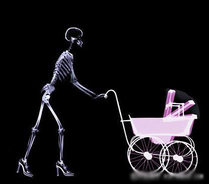Жизнь в лучах рентгена: Рис.9