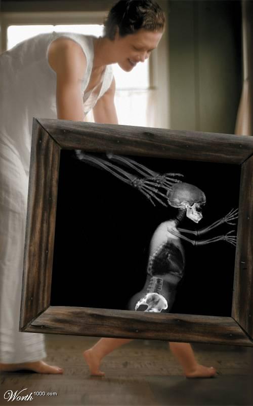 Жизнь в лучах рентгена: Рис.10