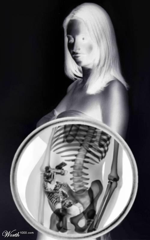 рисунок рентгена